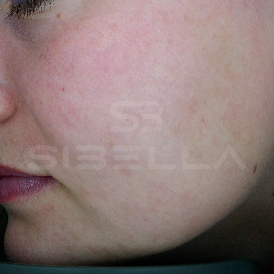 na acne 2