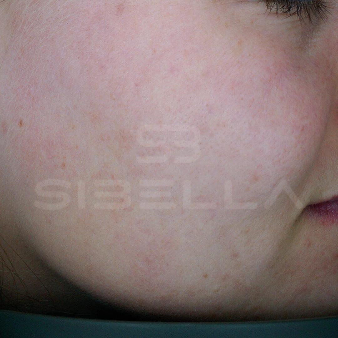 na littekens & acne 1