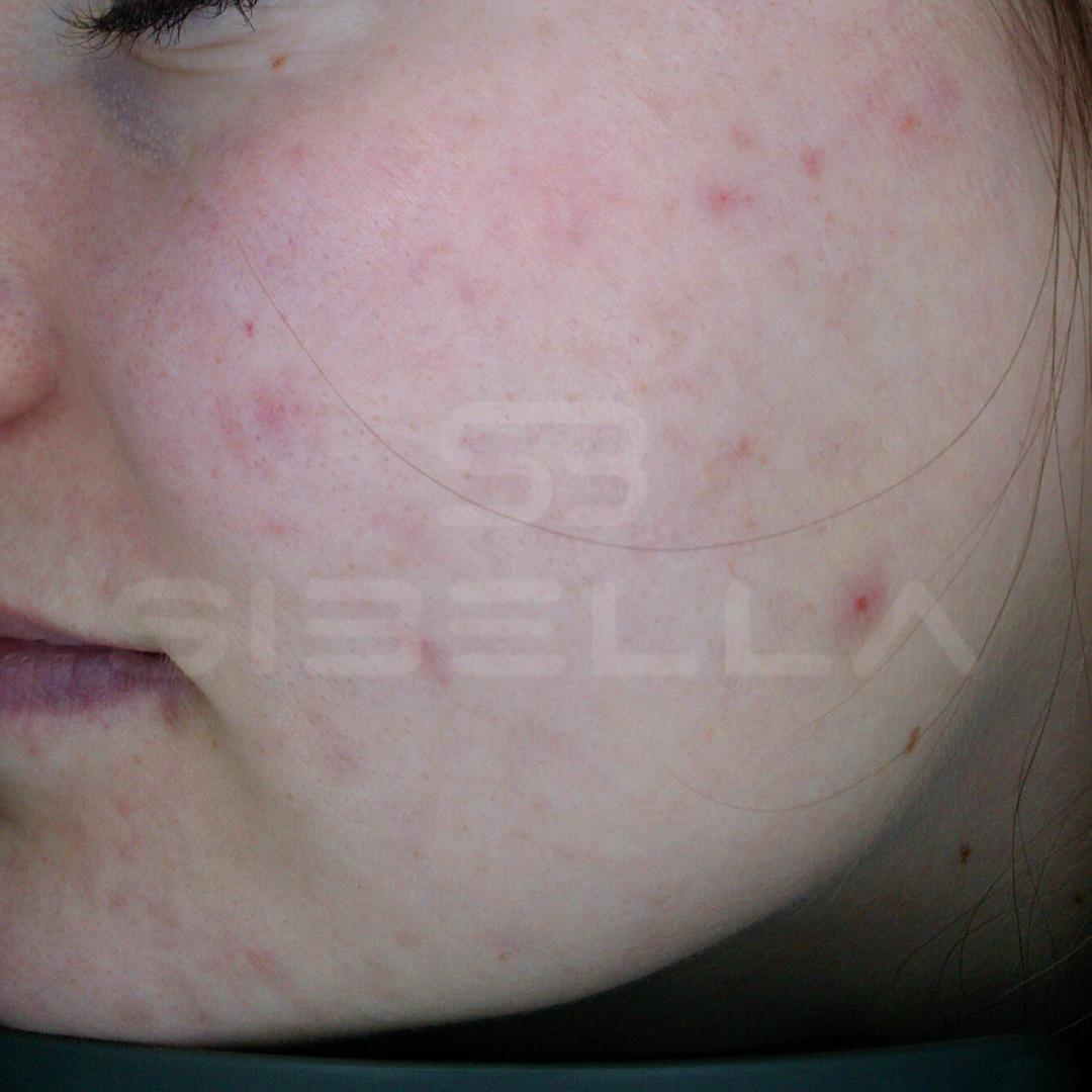 voor acne 2